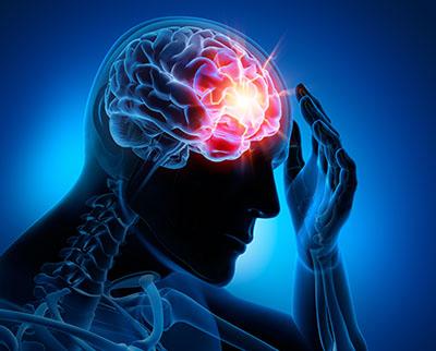 Tension Headaches - BodyWorks